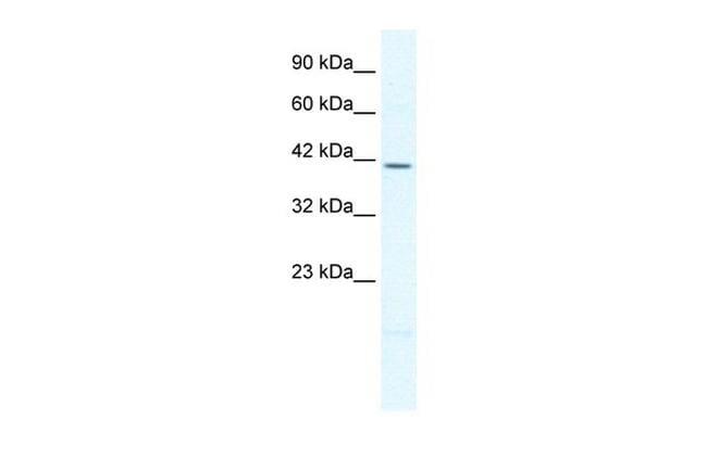 PITX2 Antibody in Western Blot (WB)
