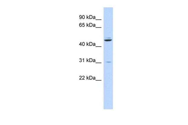 ZNF238 Antibody in Western Blot (WB)
