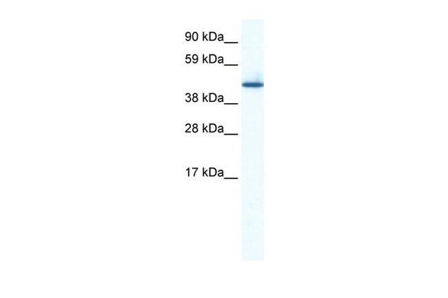 ZNF557 Antibody in Western Blot (WB)