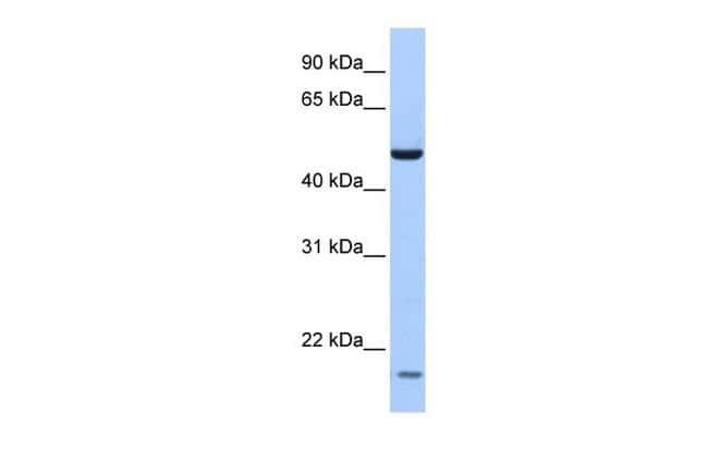 ZNF764 Antibody in Western Blot (WB)