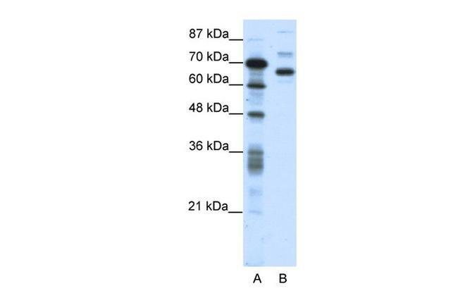 CTCFL Antibody in Western Blot (WB)