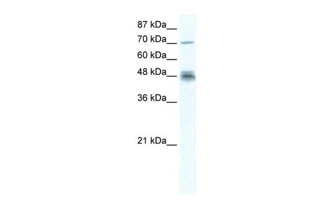 DDX50 Antibody in Western Blot (WB)