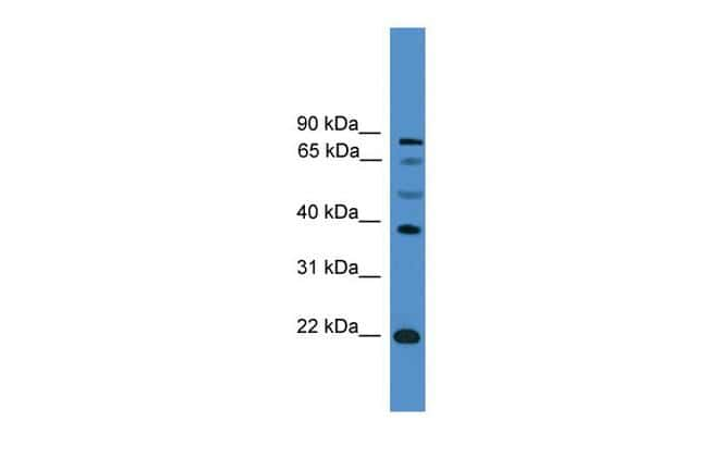 ASCL2 Antibody in Western Blot (WB)