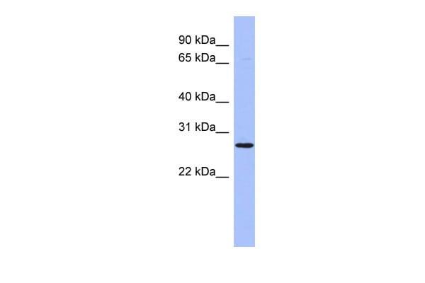 HOXA6 Antibody in Western Blot (WB)