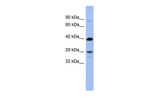 OLIG3 Antibody in Western Blot (WB)