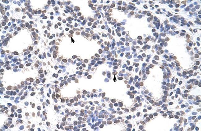 CARS Antibody in Immunohistochemistry (Paraffin) (IHC (P))