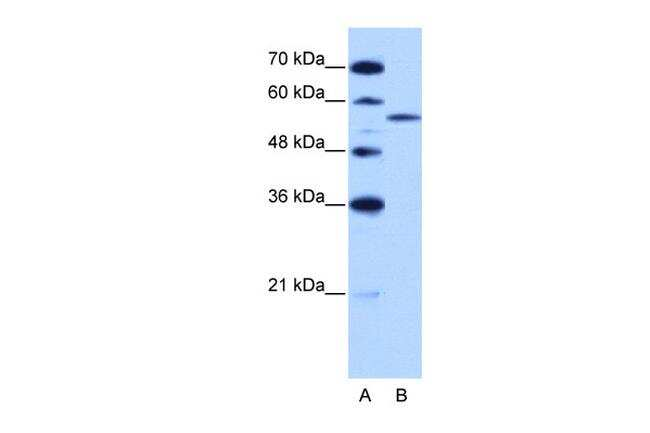 ZRSR2 Antibody in Western Blot (WB)