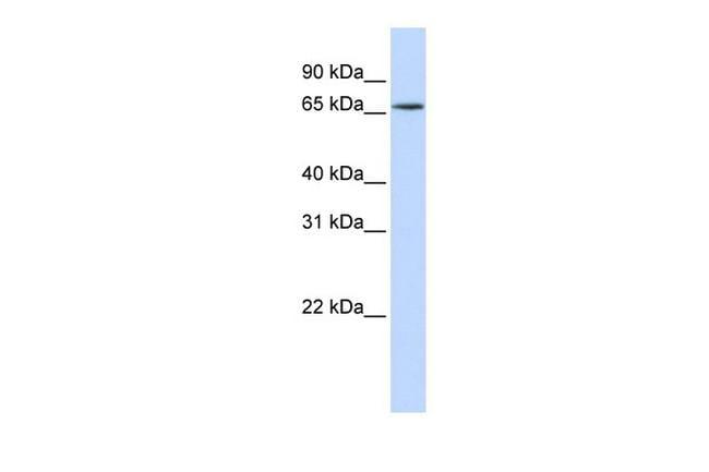 hnRNP R Antibody in Western Blot (WB)