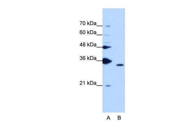 Cyclophilin E Antibody in Western Blot (WB)