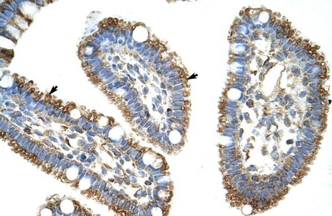 DIS3L2 Antibody in Immunohistochemistry (Paraffin) (IHC (P))