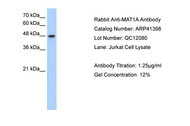 MAT1A Antibody in Western Blot (WB)