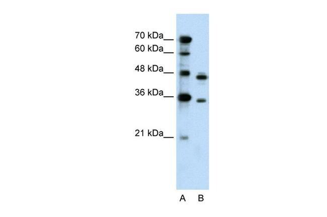 PRPS2 Antibody in Western Blot (WB)