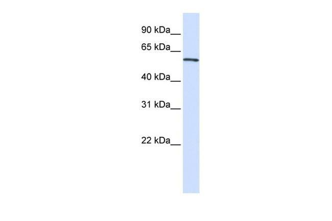 ALAS2 Antibody in Western Blot (WB)