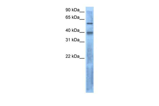 LEFTY2 Antibody in Western Blot (WB)