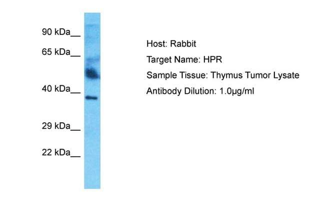 HPR Antibody in Western Blot (WB)