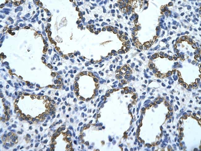 GNAS Antibody in Immunohistochemistry (Paraffin) (IHC (P))