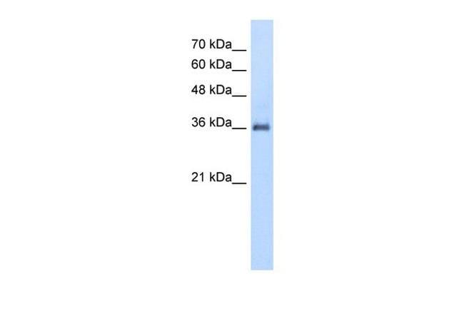 PPAP2A Antibody in Western Blot (WB)