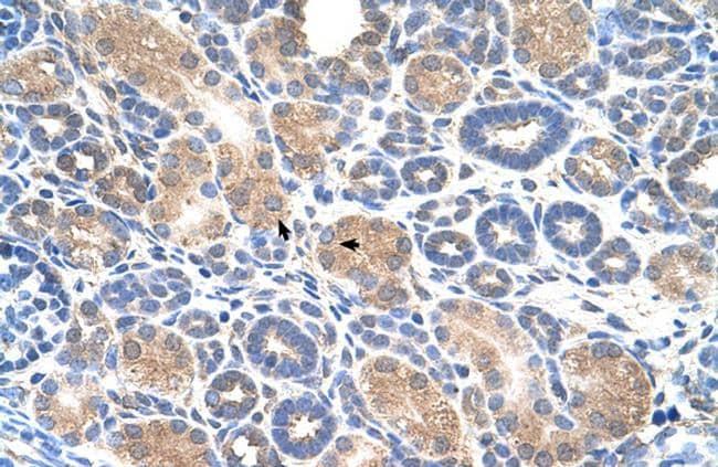 AIP2 Antibody in Immunohistochemistry (Paraffin) (IHC (P))