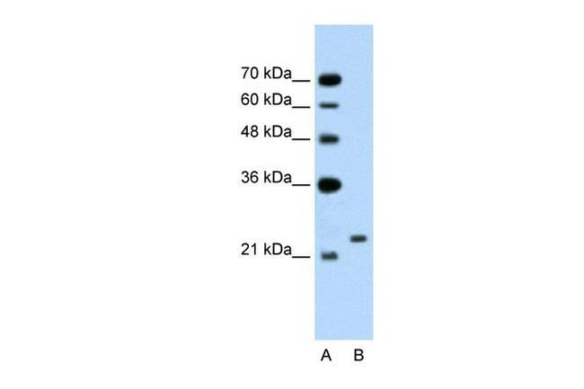 C14orf130 Antibody in Western Blot (WB)
