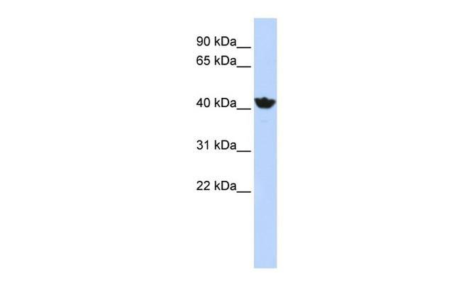 ADH4 Antibody in Western Blot (WB)