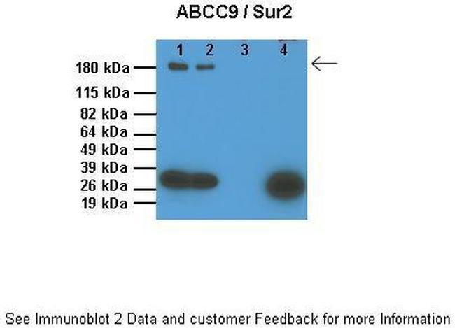 ABCC9 Antibody in Western Blot (WB)