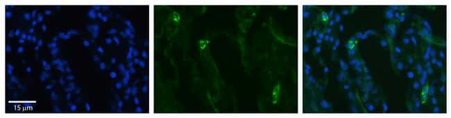 SLCO2B1 Antibody in Immunohistochemistry (Paraffin) (IHC (P))
