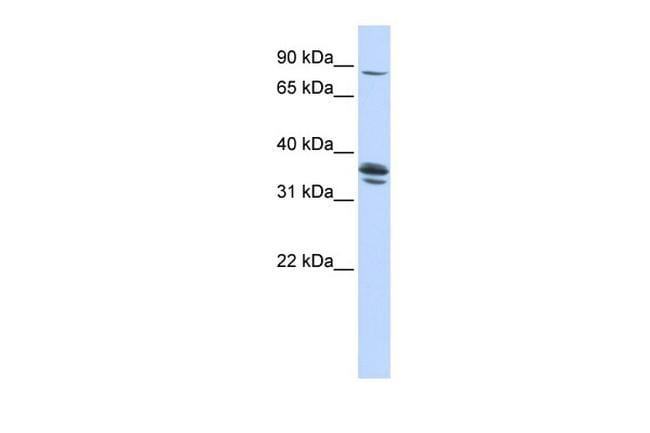 SLCO3A1 Antibody in Western Blot (WB)