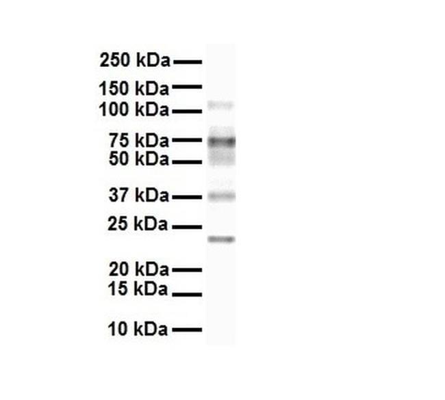 SLC27A3 Antibody in Western Blot (WB)