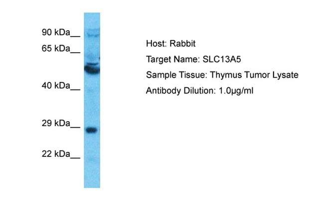 SLC13A5 Antibody in Western Blot (WB)