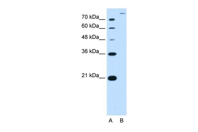 SLC26A5 Antibody in Western Blot (WB)