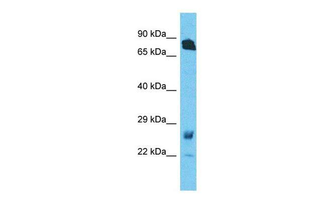 RHOT1 Antibody in Western Blot (WB)