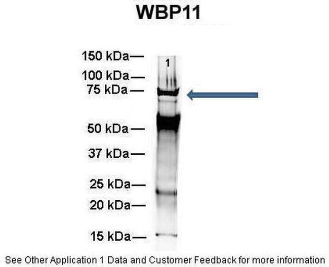 WBP11 Antibody in Immunoprecipitation (IP)