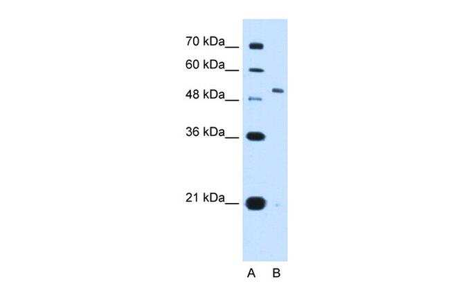 KV3.1 (KCNC1) Antibody in Western Blot (WB)