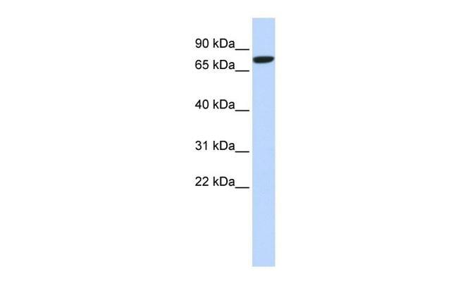 DLL1 Antibody in Western Blot (WB)