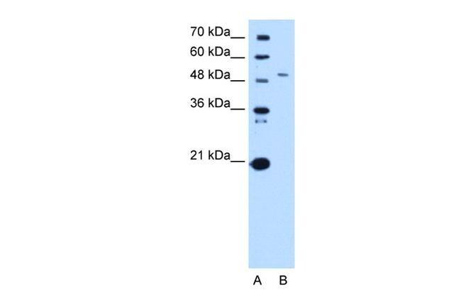 SPTLC1 Antibody in Western Blot (WB)