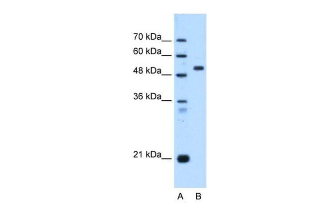 ST14 Antibody in Western Blot (WB)