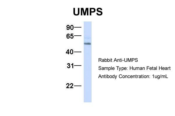 UMPS Antibody in Western Blot (WB)