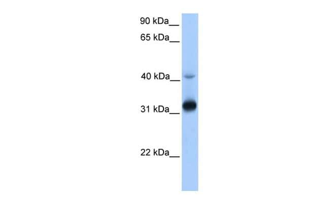 GPSN2 Antibody in Western Blot (WB)