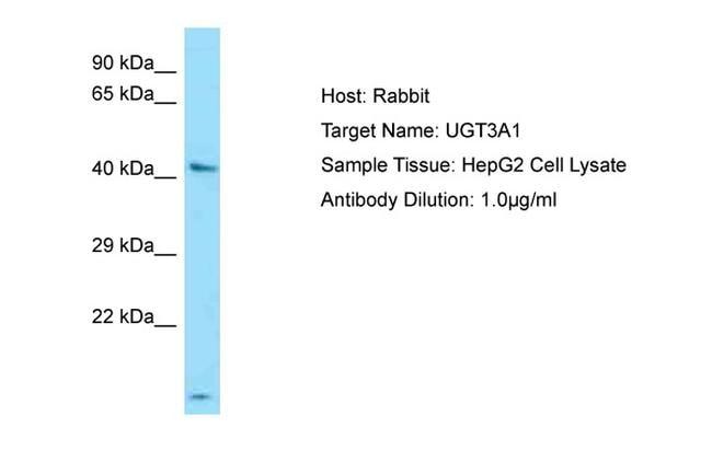 UGT3A1 Antibody in Western Blot (WB)