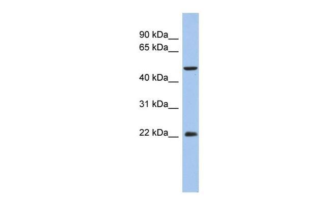 ANKH Antibody in Western Blot (WB)