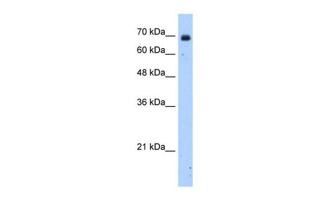 ZNF823 Antibody in Western Blot (WB)