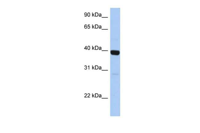 ZNF385B Antibody in Western Blot (WB)