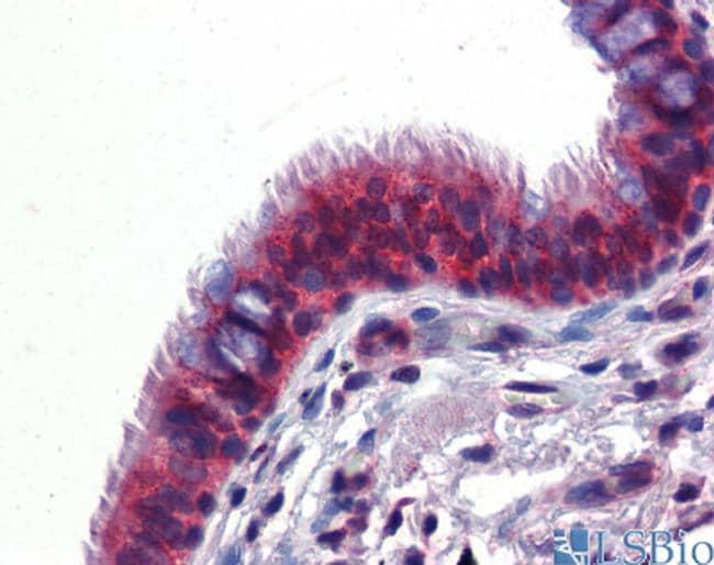 hCV-2 Antibody in Immunohistochemistry (IHC)
