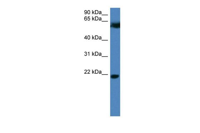 FBXO32 Antibody in Western Blot (WB)