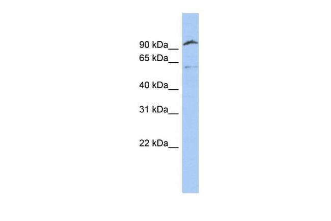 TMPRSS6 Antibody in Western Blot (WB)