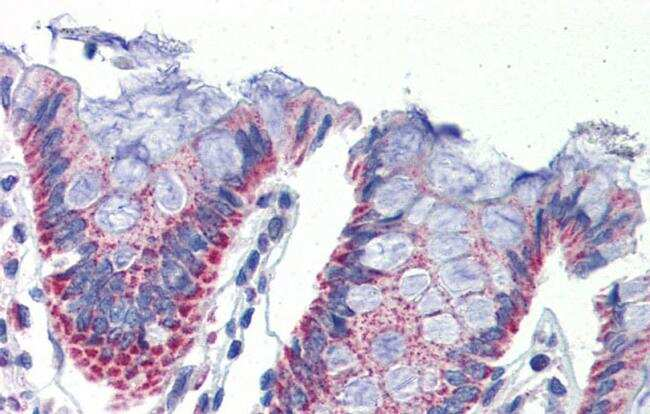 IMPDH1 Antibody in Immunohistochemistry (IHC)