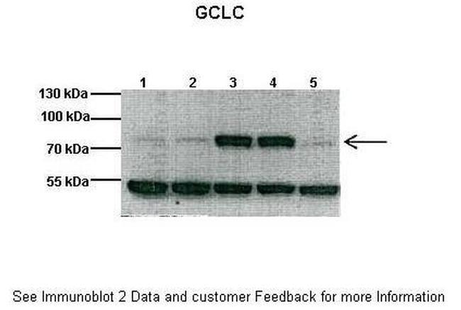 GCLC Antibody in Western Blot (WB)