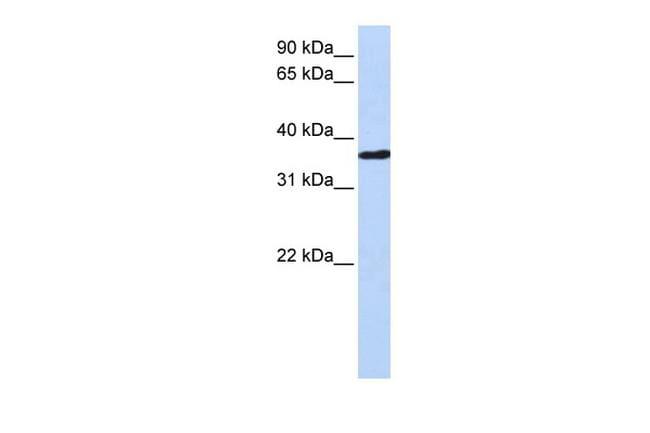 CHORDC1 Antibody in Western Blot (WB)