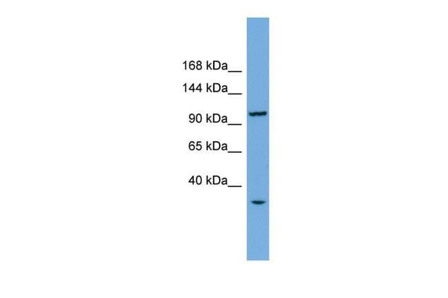 CHTF18 Antibody in Western Blot (WB)