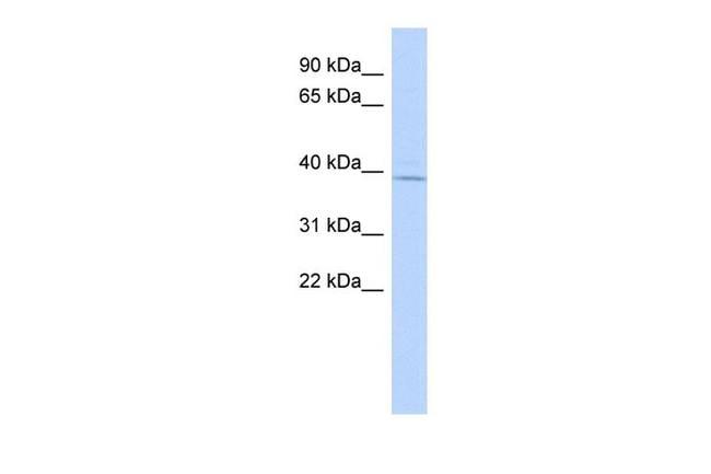 MAGT1 Antibody in Western Blot (WB)